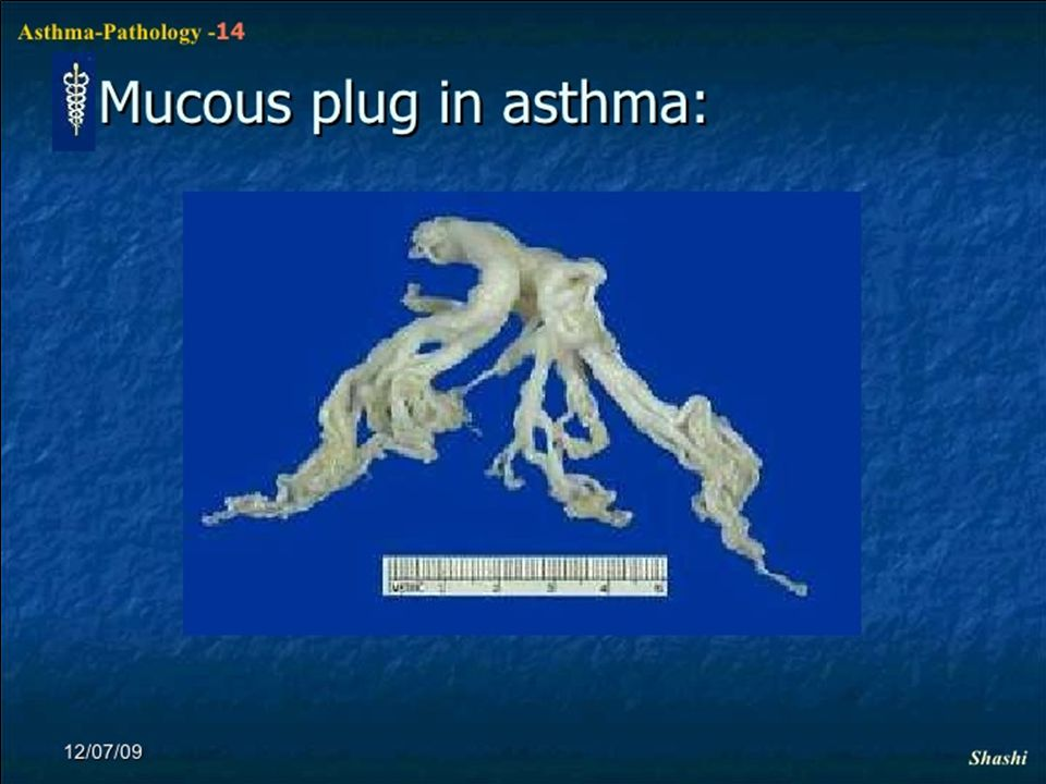 A possible new definition of asthma: clinical syndrome or heterogeneous disease GINA 2014, draft