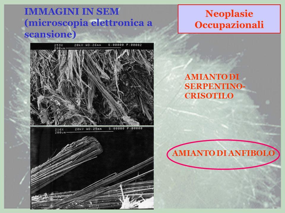 IMMAGINI IN SEM (microscopia elettronica a scansione) AMIANTO DI SERPENTINO- CRISOTILO AMIANTO DI ANFIBOLO Neoplasie Occupazionali