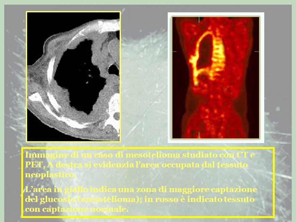 Immagine di un caso di mesotelioma studiato con CT e PET, A destra si evidenzia l'area occupata dal tessuto neoplastico.