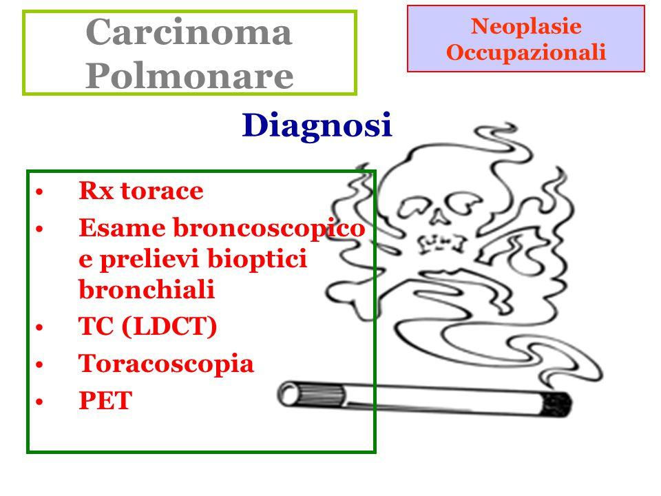 Carcinoma Polmonare Neoplasie Occupazionali Rx torace Esame broncoscopico e prelievi bioptici bronchiali TC (LDCT) Toracoscopia PET Diagnosi