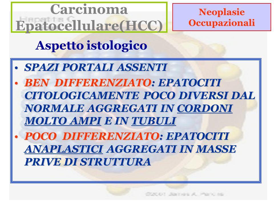 Neoplasie Occupazionali Carcinoma Epatocellulare(HCC) Aspetto istologico SPAZI PORTALI ASSENTISPAZI PORTALI ASSENTI BEN DIFFERENZIATO: EPATOCITI CITOLOGICAMENTE POCO DIVERSI DAL NORMALE AGGREGATI IN CORDONI MOLTO AMPI E IN TUBULIBEN DIFFERENZIATO: EPATOCITI CITOLOGICAMENTE POCO DIVERSI DAL NORMALE AGGREGATI IN CORDONI MOLTO AMPI E IN TUBULI POCO DIFFERENZIATO: EPATOCITI ANAPLASTICI AGGREGATI IN MASSE PRIVE DI STRUTTURAPOCO DIFFERENZIATO: EPATOCITI ANAPLASTICI AGGREGATI IN MASSE PRIVE DI STRUTTURA