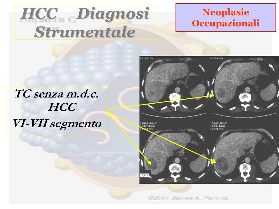 HCC Diagnosi Strumentale TC senza m.d.c. HCC VI-VII segmento Neoplasie Occupazionali