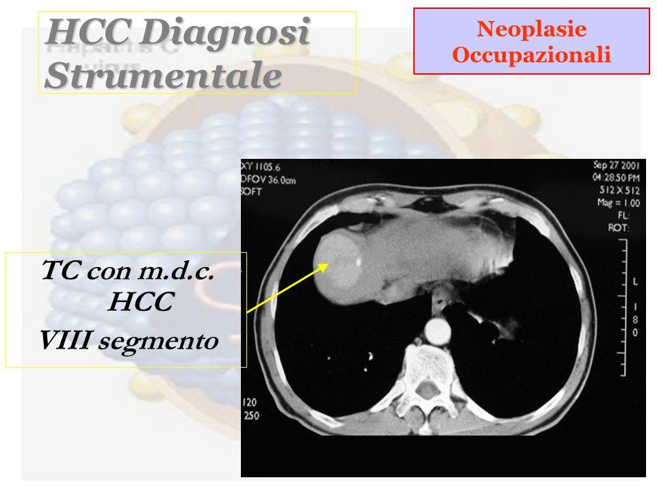 HCC Diagnosi Strumentale TC con m.d.c. HCC VIII segmento Neoplasie Occupazionali