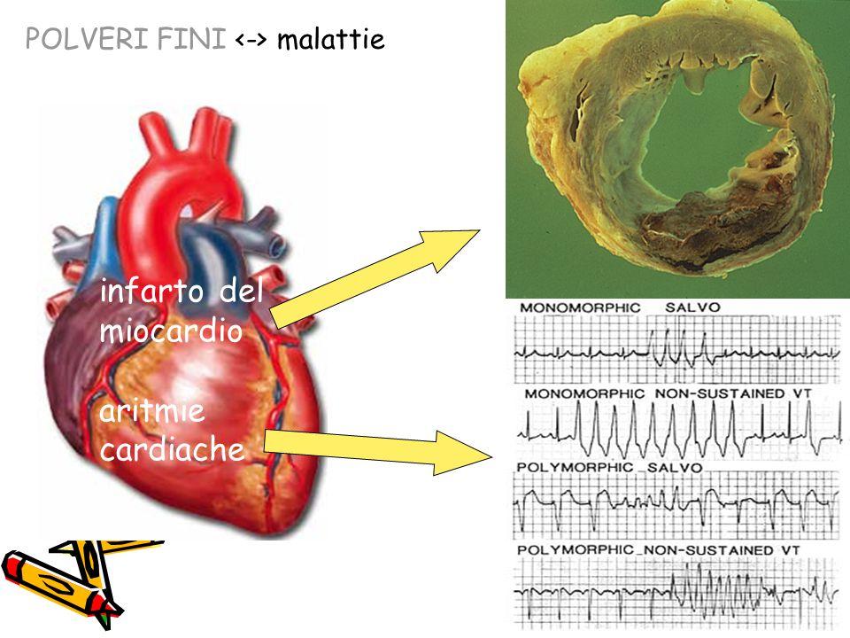 infarto del miocardio aritmie cardiache POLVERI FINI malattie