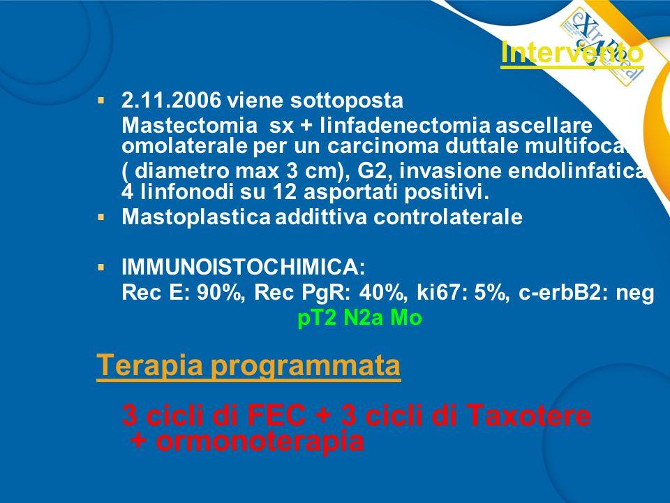 Intervento  2.11.2006 viene sottoposta Mastectomia sx + linfadenectomia ascellare omolaterale per un carcinoma duttale multifocale ( diametro max 3 cm), G2, invasione endolinfatica.