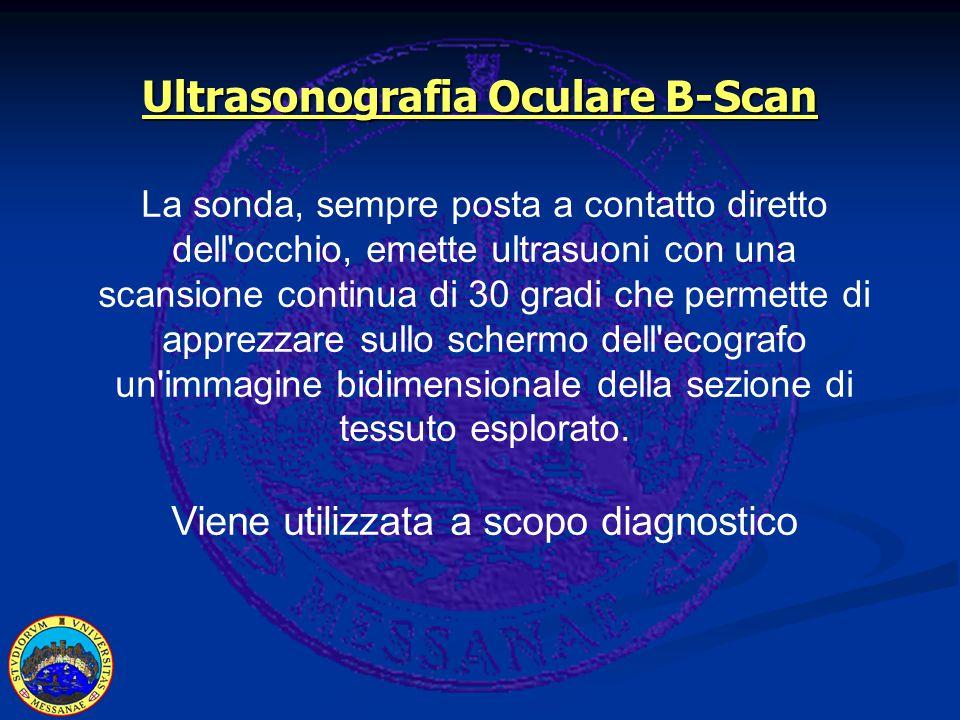 Ultrasonografia Oculare B-Scan La sonda, sempre posta a contatto diretto dell occhio, emette ultrasuoni con una scansione continua di 30 gradi che permette di apprezzare sullo schermo dell ecografo un immagine bidimensionale della sezione di tessuto esplorato.