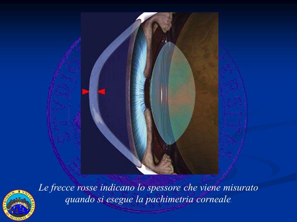 Le frecce rosse indicano lo spessore che viene misurato quando si esegue la pachimetria corneale.