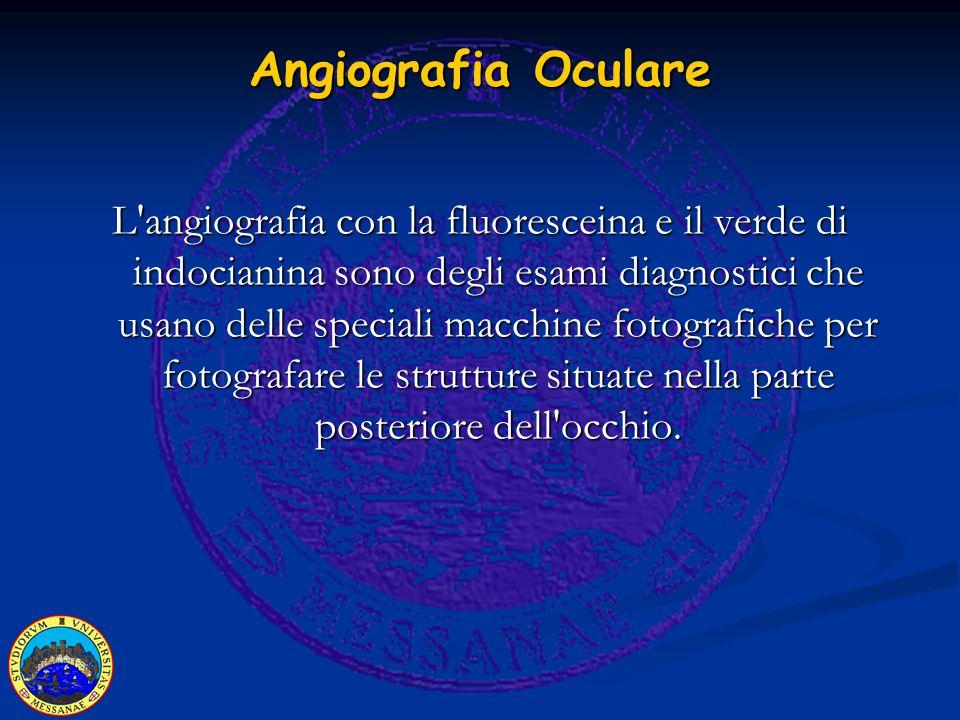 Angiografia Oculare L angiografia con la fluoresceina e il verde di indocianina sono degli esami diagnostici che usano delle speciali macchine fotografiche per fotografare le strutture situate nella parte posteriore dell occhio.