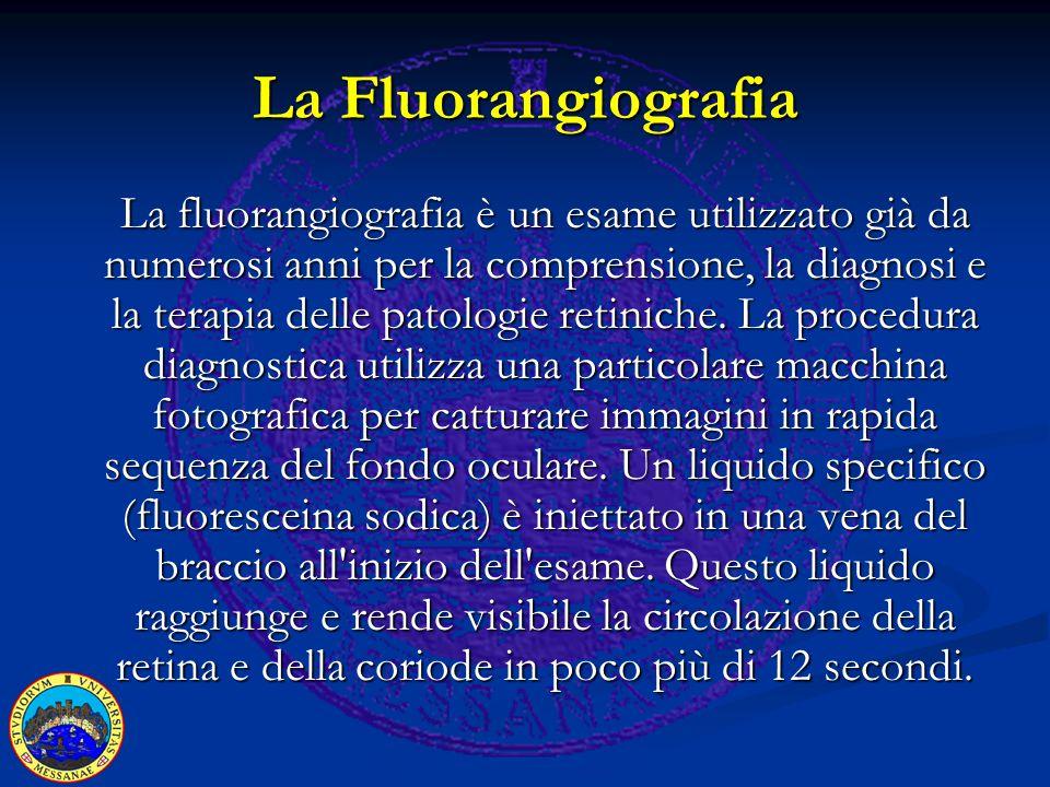 La Fluorangiografia La fluorangiografia è un esame utilizzato già da numerosi anni per la comprensione, la diagnosi e la terapia delle patologie retiniche.