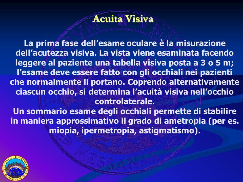 Acuita Visiva Acuita Visiva La prima fase dell'esame oculare è la misurazione dell'acutezza visiva. La vista viene esaminata facendo leggere al pazien