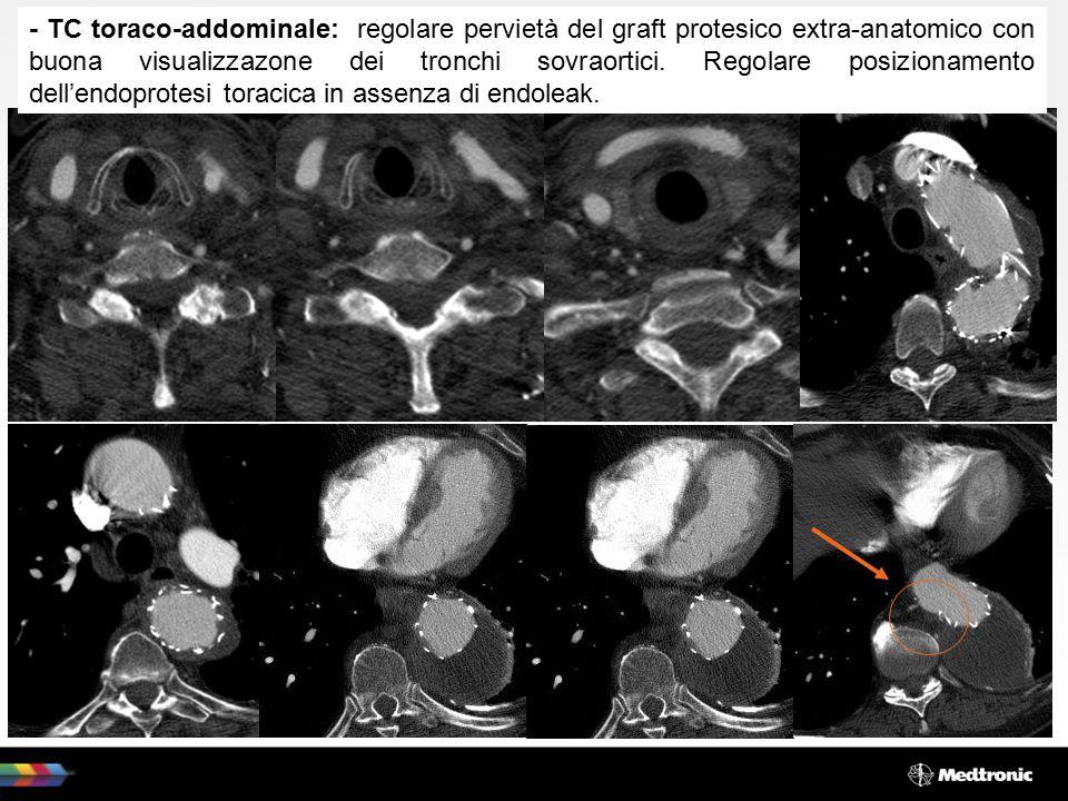 - TC toraco-addominale: regolare pervietà del graft protesico extra-anatomico con buona visualizzazone dei tronchi sovraortici. Regolare posizionament