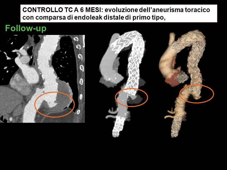 CONTROLLO TC A 6 MESI: evoluzione dell'aneurisma toracico con comparsa di endoleak distale di primo tipo, Follow-up