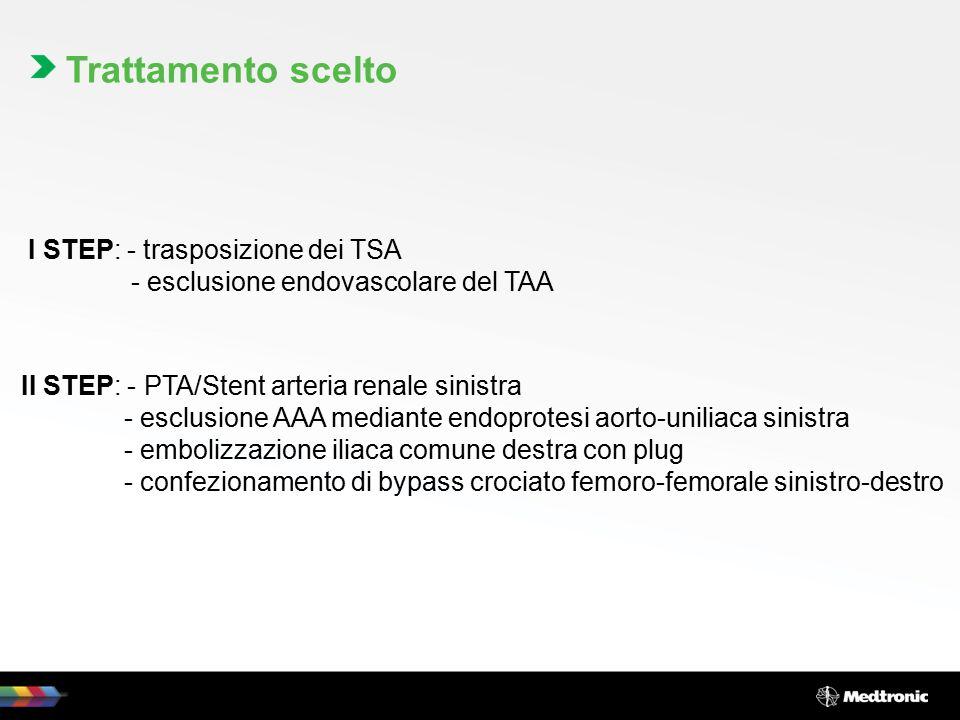 I STEP: - trasposizione dei TSA - esclusione endovascolare del TAA II STEP: - PTA/Stent arteria renale sinistra - esclusione AAA mediante endoprotesi