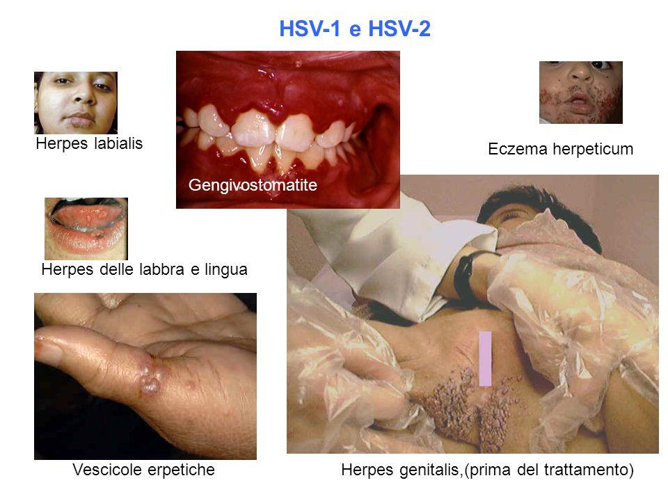Herpes delle labbra e lingua Eczema herpeticum Vescicole erpetiche Herpes labialis HSV-1 e HSV-2 Herpes genitalis,(prima del trattamento) Gengivostoma