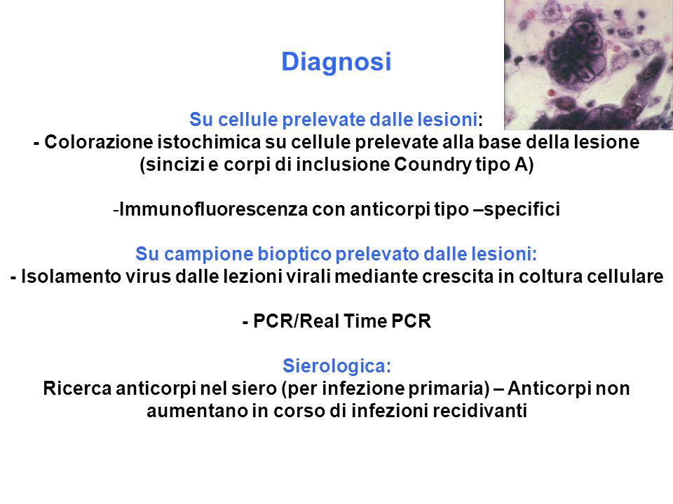 Diagnosi Su cellule prelevate dalle lesioni: - Colorazione istochimica su cellule prelevate alla base della lesione (sincizi e corpi di inclusione Cou