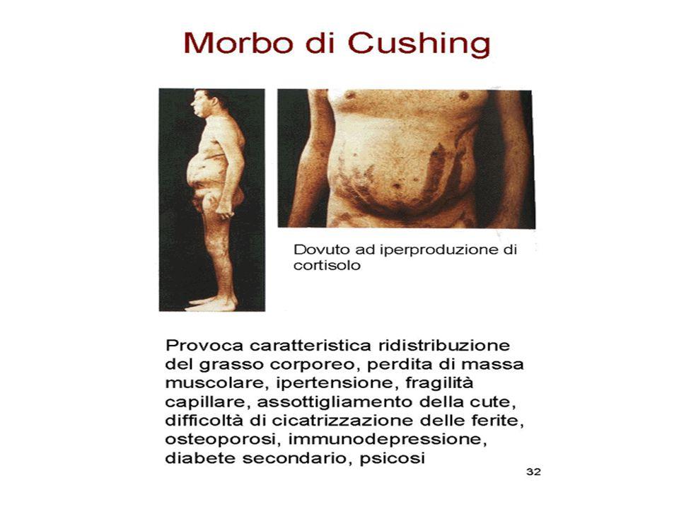 Sindrome di Cushing: quadro clinico Strie rubre57% Edema periferico56% Acne, cute grassa53% Facilità alle ecchimosi53% Disturbi psichici48% Polidipsia