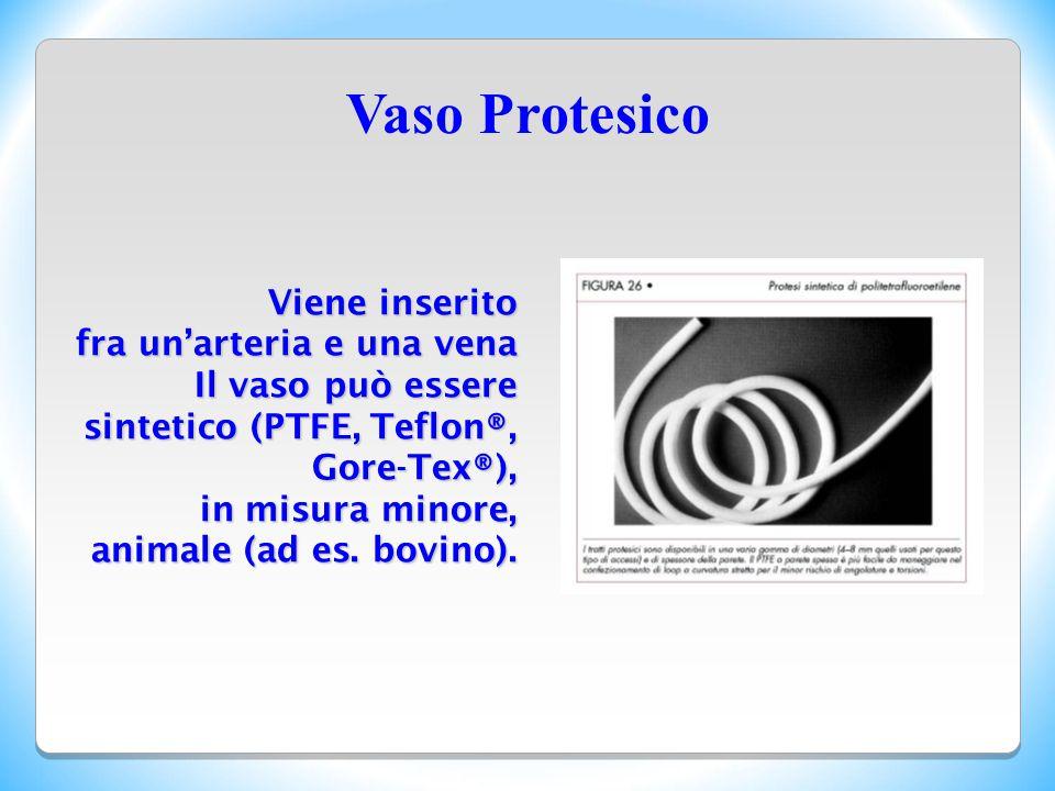Vaso Protesico Viene inserito fra un'arteria e una vena Il vaso può essere sintetico (PTFE, Teflon®, Gore-Tex®), in misura minore, animale (ad es. bov