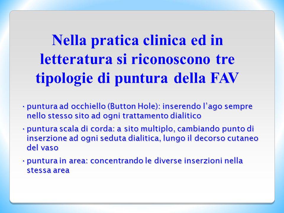 puntura ad occhiello (Button Hole): inserendo l'ago sempre nello stesso sito ad ogni trattamento dialiticopuntura ad occhiello (Button Hole): inserend