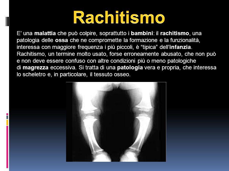E' una malattia che può colpire, soprattutto i bambini: il rachitismo, una patologia delle ossa che ne compromette la formazione e la funzionalità, interessa con maggiore frequenza i più piccoli, è tipica dell'infanzia.