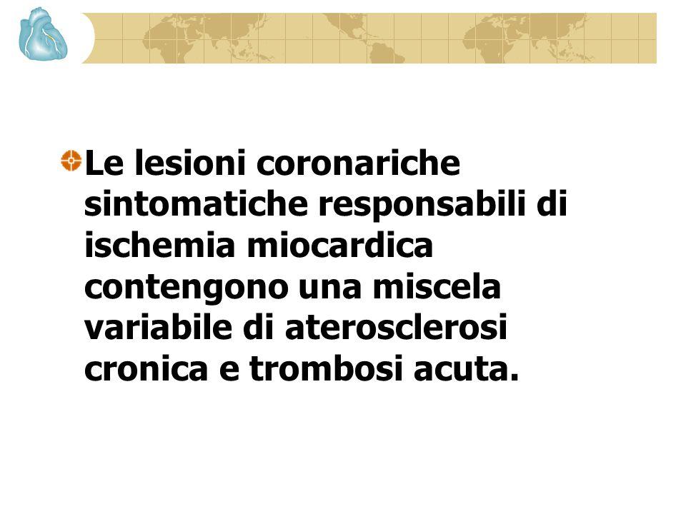 L'aterosclerosi predomina nelle lesioni responsabili dell'angina stabile cronica