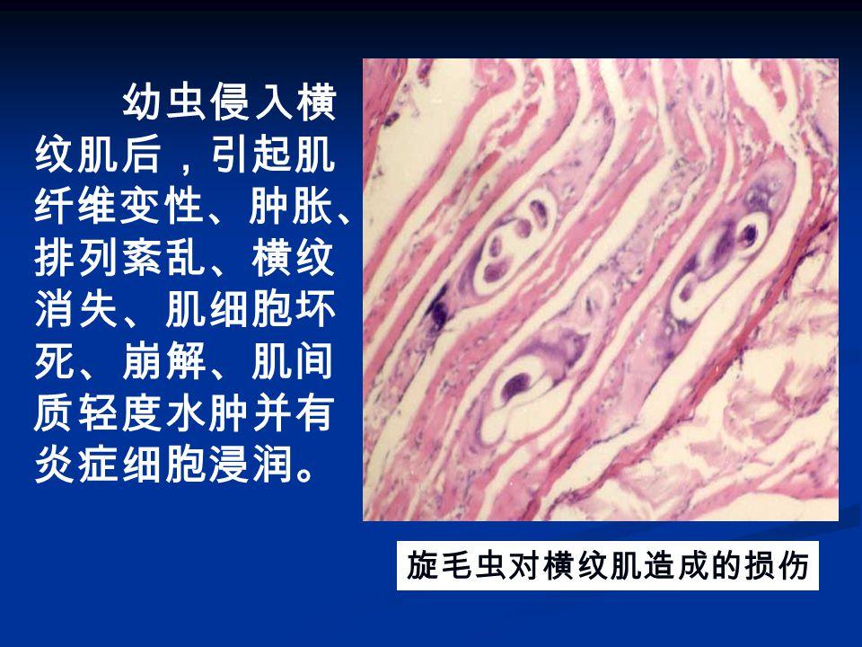 旋毛虫对横纹肌造成的损伤 幼虫侵入横 纹肌后,引起肌 纤维变性、肿胀、 排列紊乱、横纹 消失、肌细胞坏 死、崩解、肌间 质轻度水肿并有 炎症细胞浸润。