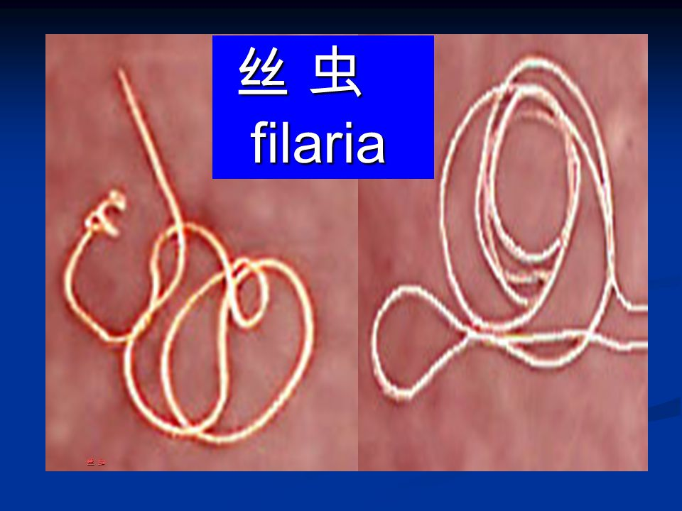 丝 虫 filaria 丝 虫 filaria 丝 虫丝 虫丝 虫丝 虫