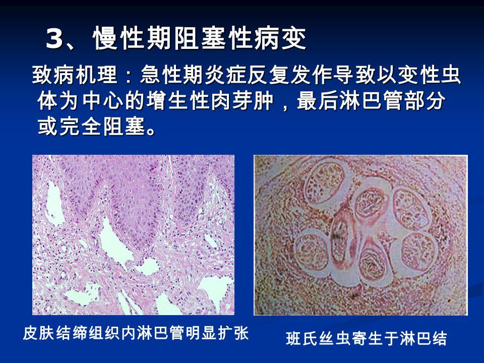 致病机理:急性期炎症反复发作导致以变性虫 体为中心的增生性肉芽肿,最后淋巴管部分 或完全阻塞。 致病机理:急性期炎症反复发作导致以变性虫 体为中心的增生性肉芽肿,最后淋巴管部分 或完全阻塞。 皮肤结缔组织内淋巴管明显扩张 班氏丝虫寄生于淋巴结 3 、慢性期阻塞性病变