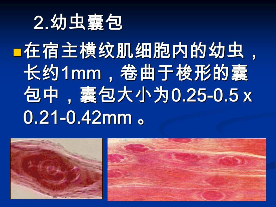 2. 幼虫囊包 在宿主横纹肌细胞内的幼虫, 长约 1mm ,卷曲于梭形的囊 包中,囊包大小为 0.25-0.5 x 0.21-0.42mm 。 在宿主横纹肌细胞内的幼虫, 长约 1mm ,卷曲于梭形的囊 包中,囊包大小为 0.25-0.5 x 0.21-0.42mm 。