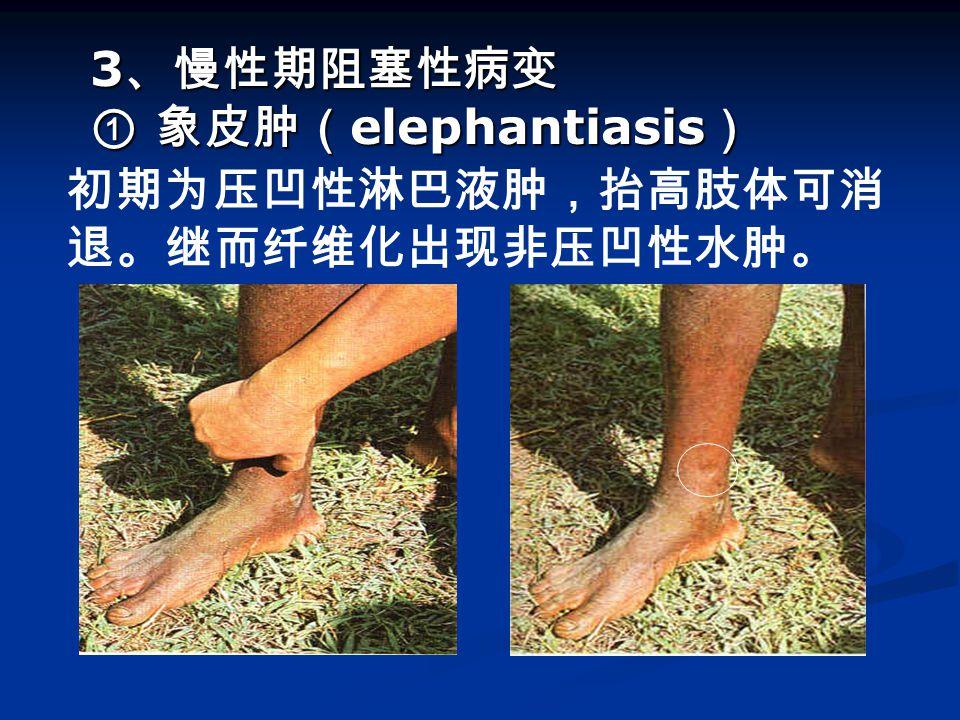 3 、慢性期阻塞性病变 ① 象皮肿( elephantiasis ) 3 、慢性期阻塞性病变 ① 象皮肿( elephantiasis ) 初期为压凹性淋巴液肿,抬高肢体可消 退。继而纤维化出现非压凹性水肿。