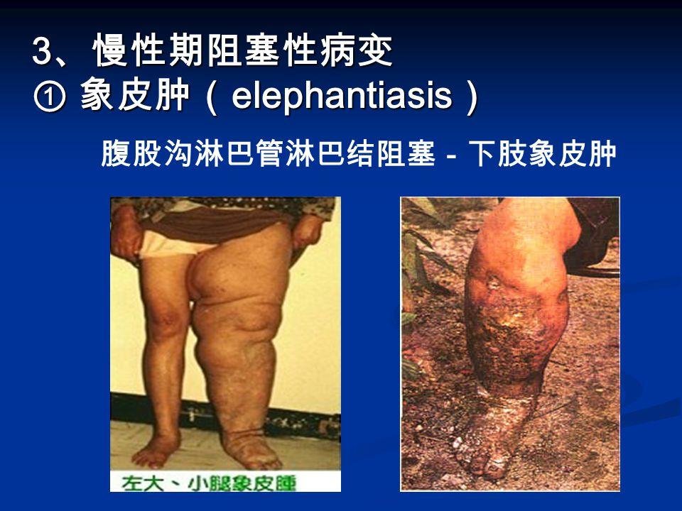 3 、慢性期阻塞性病变 ① 象皮肿( elephantiasis ) 3 、慢性期阻塞性病变 ① 象皮肿( elephantiasis ) 腹股沟淋巴管淋巴结阻塞-下肢象皮肿