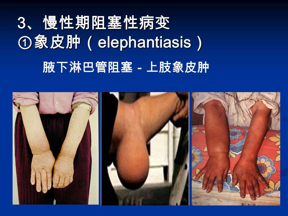 3 、慢性期阻塞性病变 ①象皮肿( elephantiasis ) 3 、慢性期阻塞性病变 ①象皮肿( elephantiasis ) 腋下淋巴管阻塞-上肢象皮肿