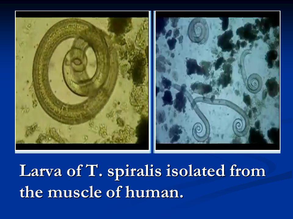 班氏丝虫寄生于淋巴管内 淋巴结内丝虫成虫