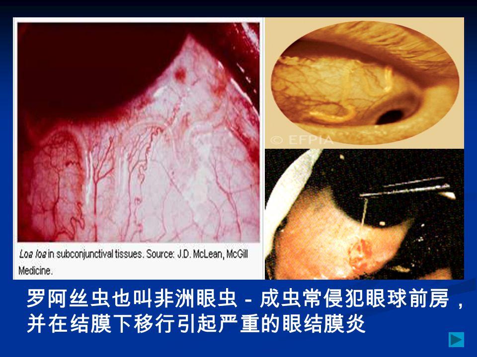 罗阿丝虫也叫非洲眼虫-成虫常侵犯眼球前房, 并在结膜下移行引起严重的眼结膜炎