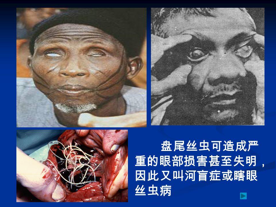 盘尾丝虫可造成严 重的眼部损害甚至失明, 因此又叫河盲症或瞎眼 丝虫病
