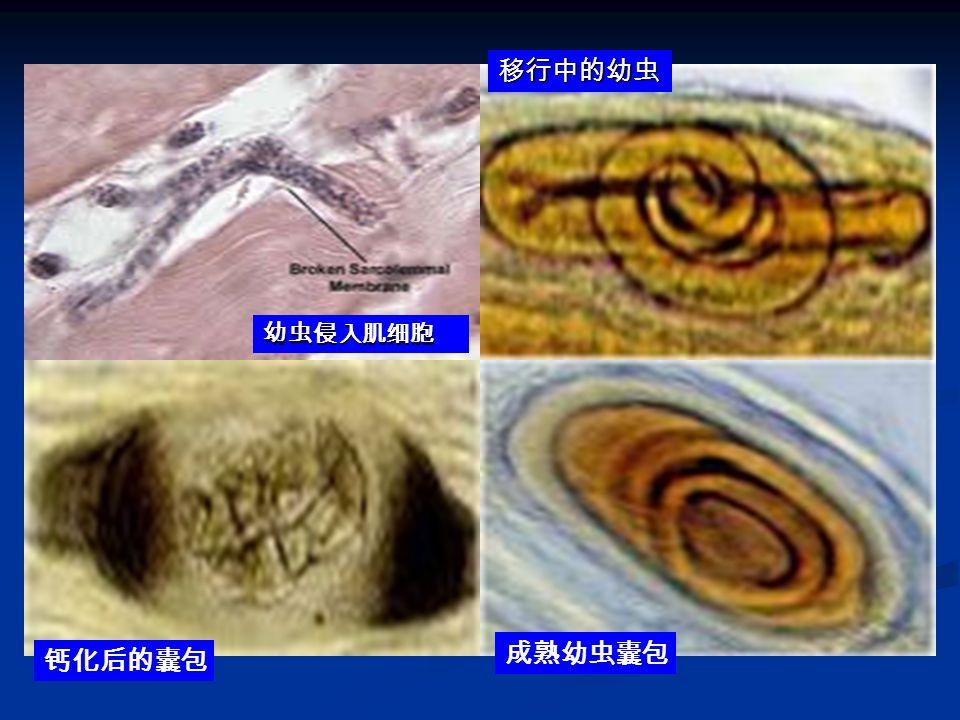 二、生 活 史 * 学习要点:  寄生部位:成虫 - 小肠, 幼虫 - 横纹肌细胞内 幼虫 - 横纹肌细胞内  感染阶段:幼虫囊包  感染途径与方式:经口感染  致病阶段:幼虫(主要致病虫期)、 成虫  诊断阶段: 幼虫及囊包