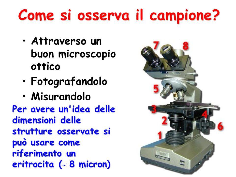 Come si osserva il campione? Attraverso un buon microscopio ottico Fotografandolo Misurandolo Per avere un'idea delle dimensioni delle strutture osser