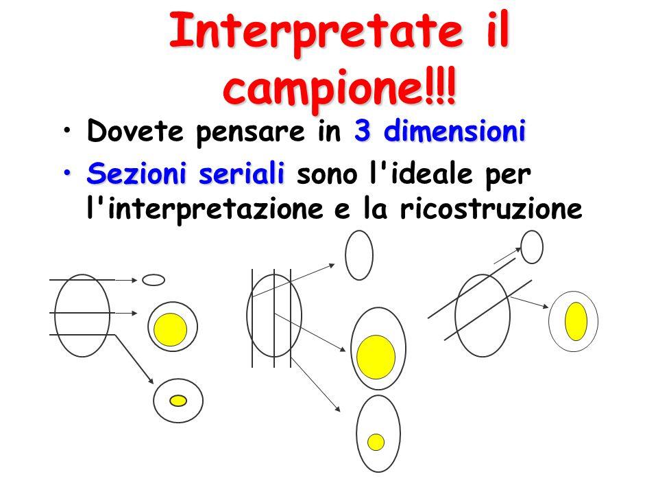 Interpretate il campione!!! 3 dimensioniDovete pensare in 3 dimensioni Sezioni serialiSezioni seriali sono l'ideale per l'interpretazione e la ricostr