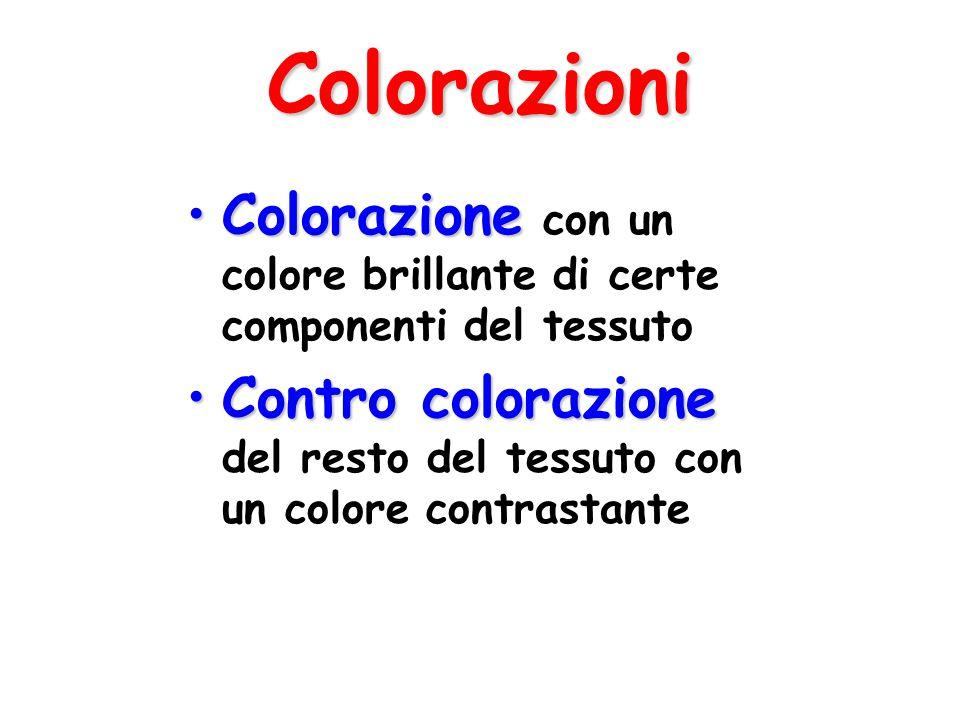 Colorazioni ColorazioneColorazione con un colore brillante di certe componenti del tessuto Contro colorazioneContro colorazione del resto del tessuto