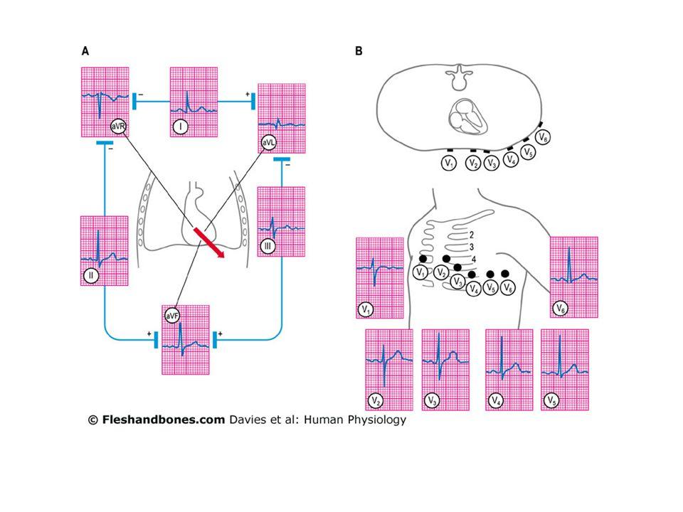 ECG Normale R Q T U P S mV + - P Wave Space QRS ST T PQ