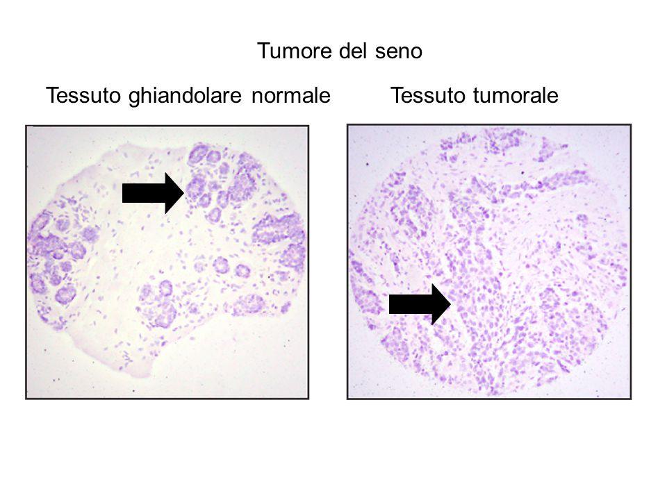 Tessuto ghiandolare normaleTessuto tumorale Tumore del seno