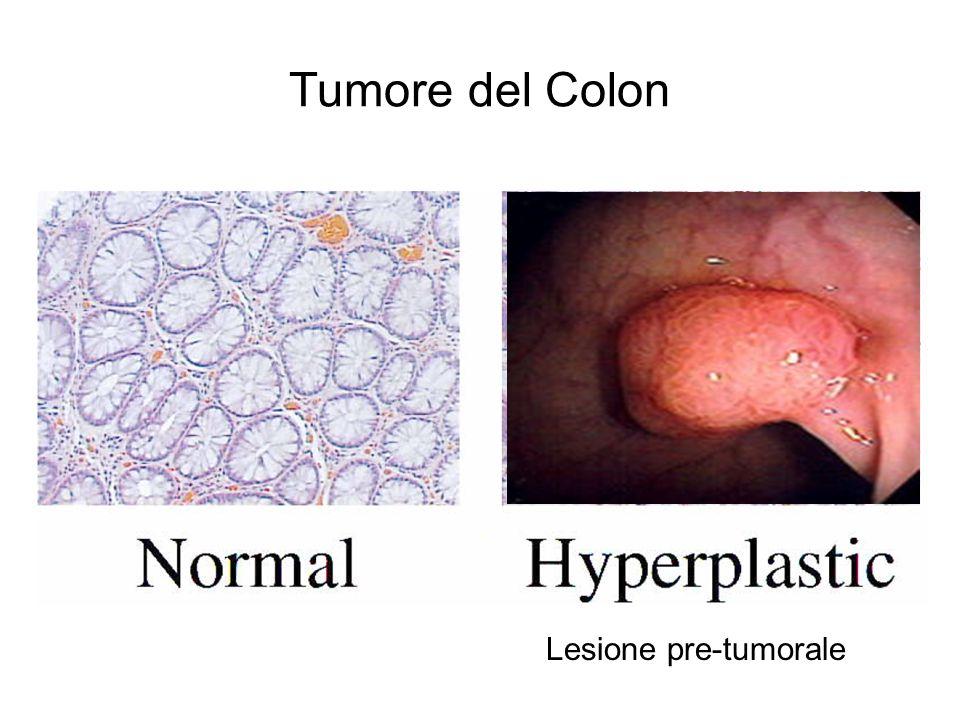 RET/PTC1 overespresso Cellule crescono di piú acquisiscono un fenotipo trasformato NB: PTC=Carcinoma Papillare della Tiroide H4 = il gene con cui avviene la fusione Y451F: mutazione inattivante