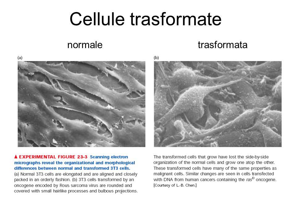Cellule trasformate normaletrasformata