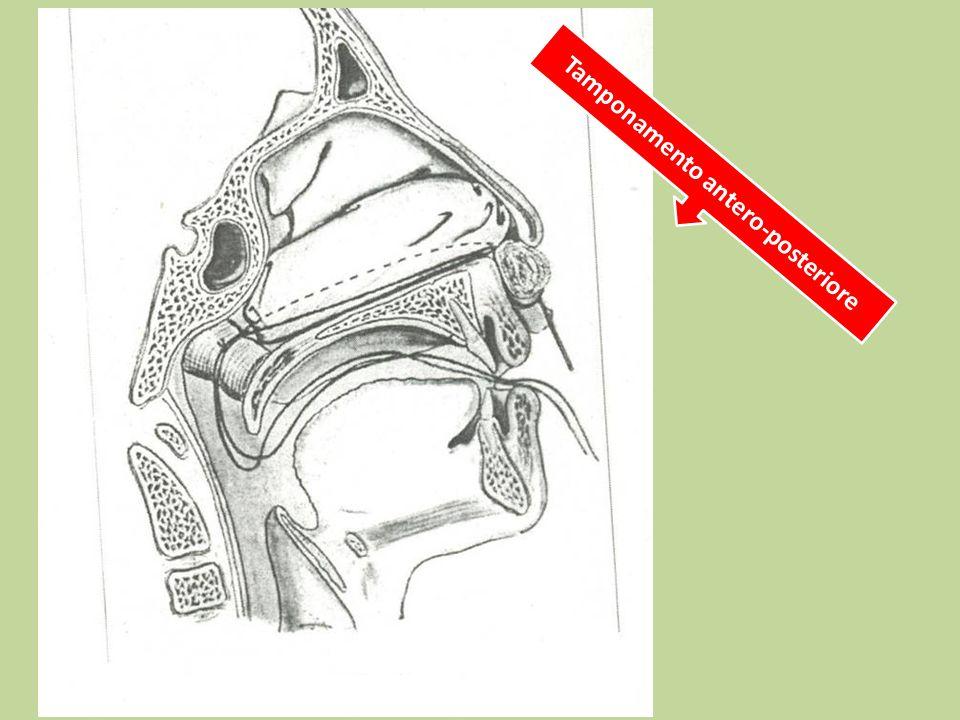 Tamponamento antero-posteriore