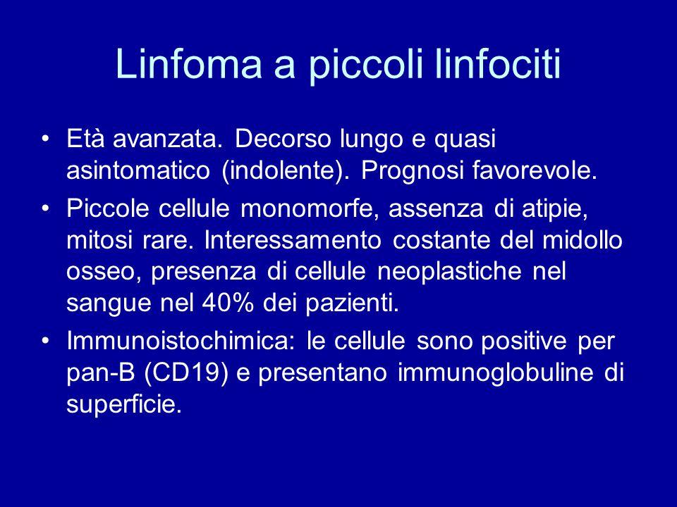 Linfoma a piccoli linfociti Età avanzata. Decorso lungo e quasi asintomatico (indolente). Prognosi favorevole. Piccole cellule monomorfe, assenza di a