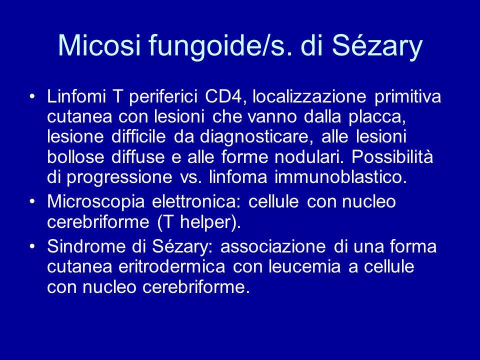 Micosi fungoide/s. di Sézary Linfomi T periferici CD4, localizzazione primitiva cutanea con lesioni che vanno dalla placca, lesione difficile da diagn