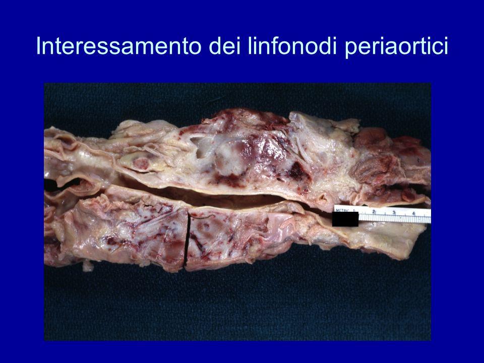 Interessamento dei linfonodi periaortici