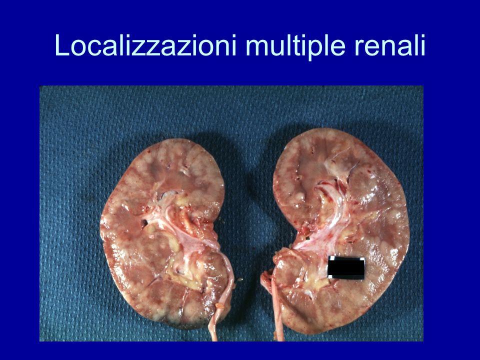 Localizzazioni multiple renali