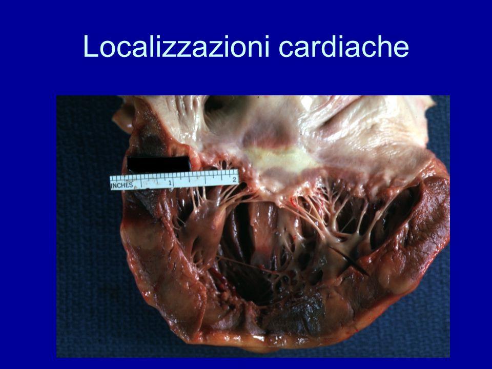 Localizzazioni cardiache