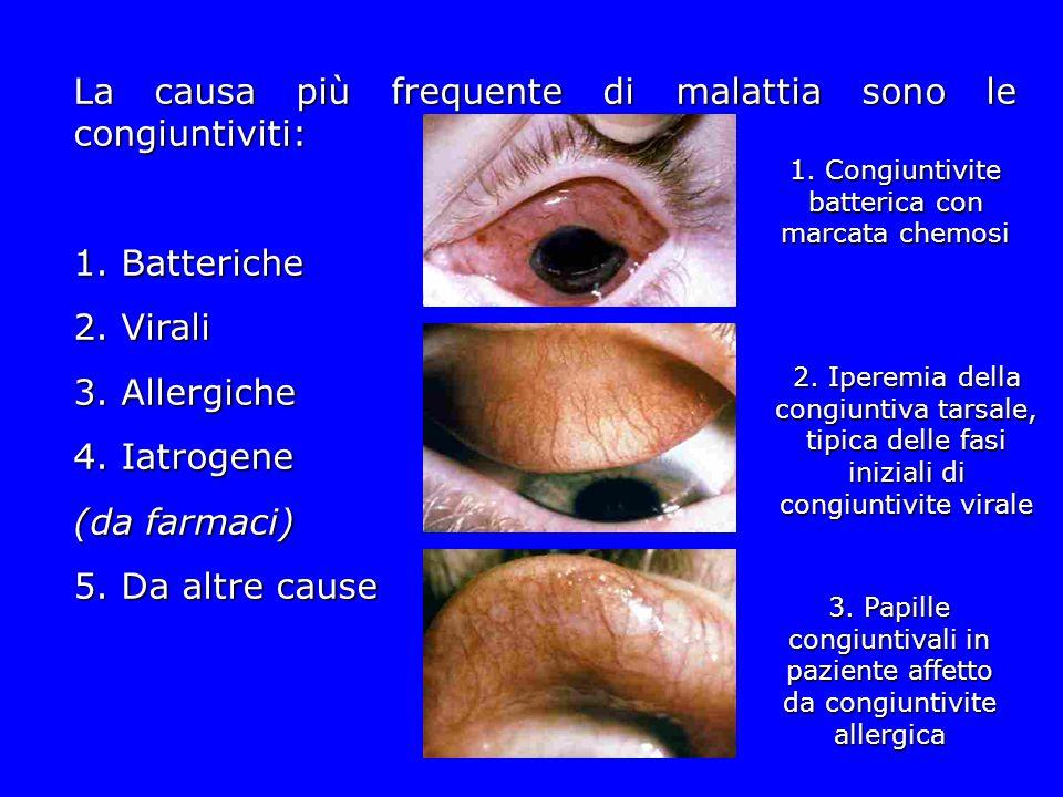 La causa più frequente di malattia sono le congiuntiviti: 1. Batteriche 2. Virali 3. Allergiche 4. Iatrogene (da farmaci) 5. Da altre cause 1. Congiun