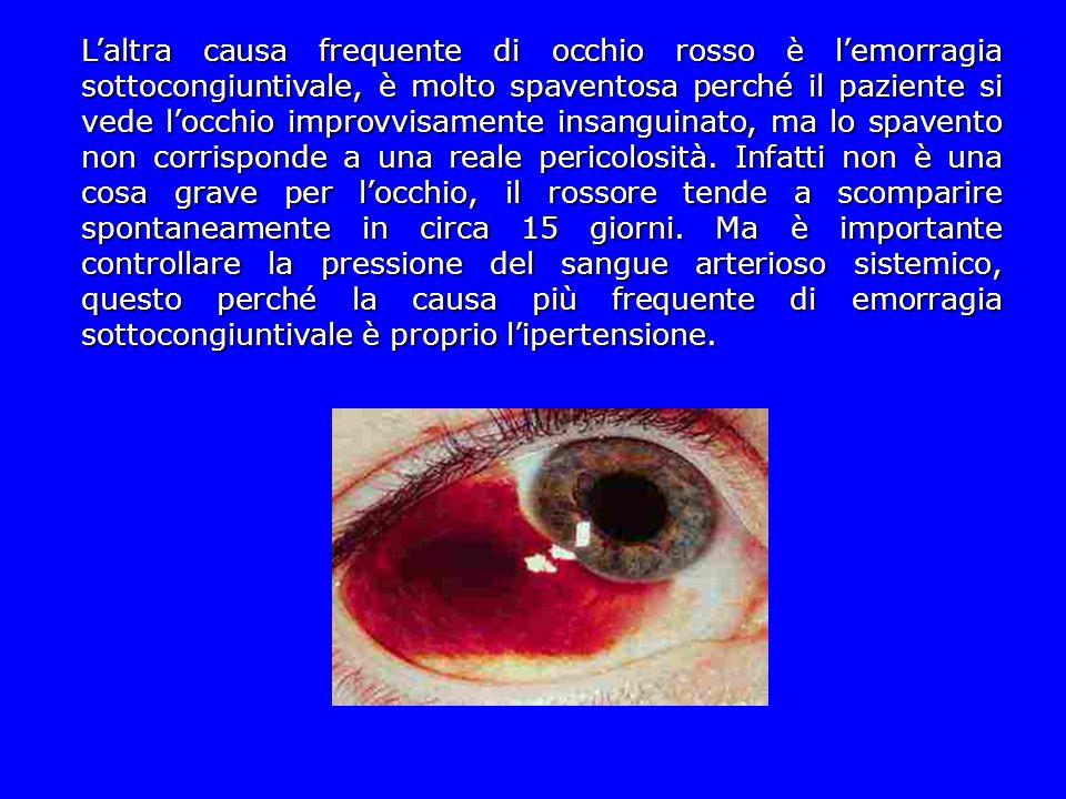 L'altra causa frequente di occhio rosso è l'emorragia sottocongiuntivale, è molto spaventosa perché il paziente si vede l'occhio improvvisamente insan